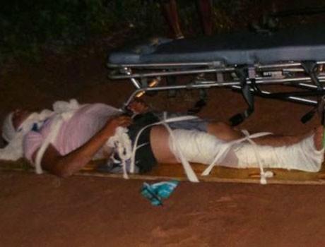 Homem sofre fratura exposta após se envolver em acidente no PI