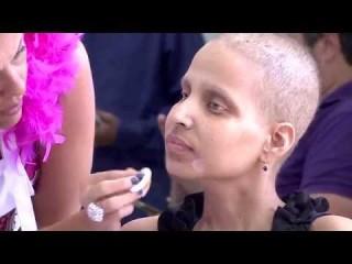 Ex-modelo cria projeto com dicas de beleza para mulheres com câncer<